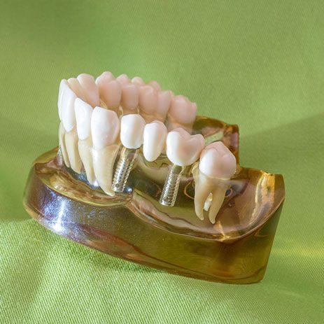 Zahnarzt in Bad Kreuznach - Zahnarztpraxis Kessler & Bruns - Detailfoto Implantate
