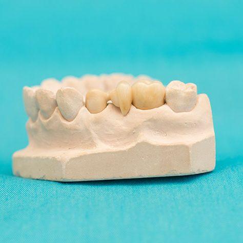 Zahnarzt in Bad Kreuznach - Zahnarztpraxis Kessler & Bruns - Detailfoto Vollkeramischer-Zahnersatz